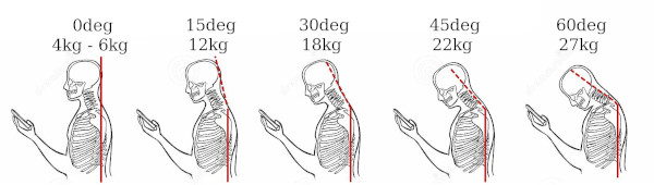 Incidences de l'angle sur la poids a porter par le cou